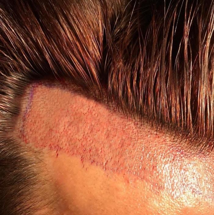 השתלת שיער במפרצים תמונה מקרוב