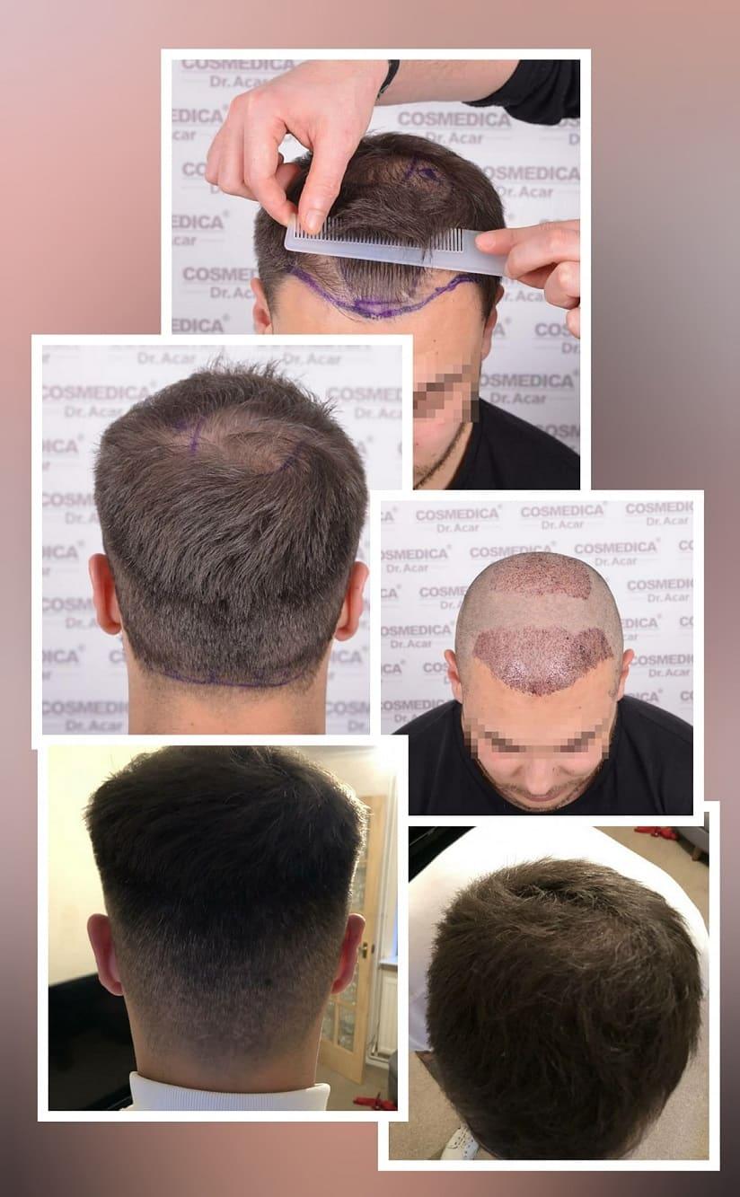 השתלת שיער מאוד מוצלחת באזור הכתר של הראש