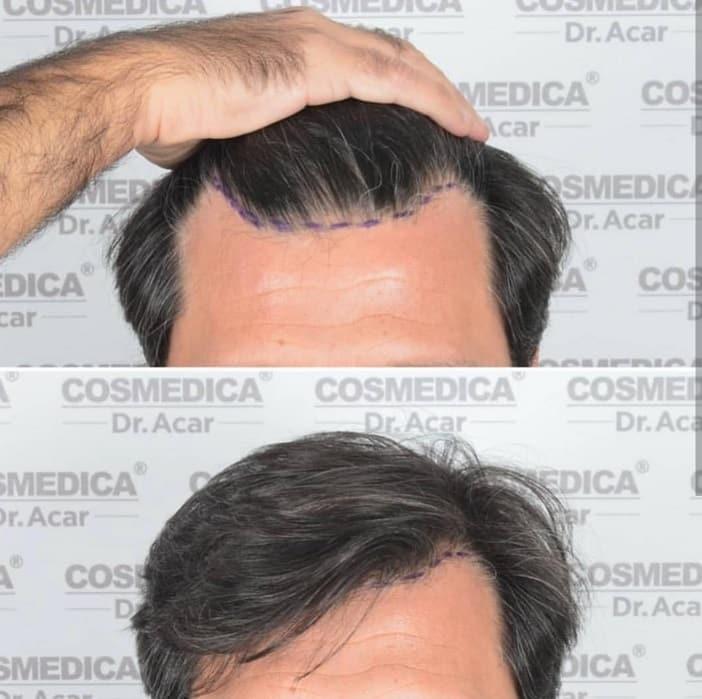 השתלת שיער מוצלחת של דר אקאר מאיסטנבות קו מתעגל