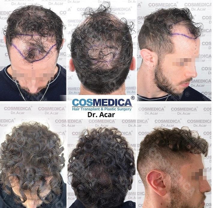 השתלת שיער מתולתל לפני ואחרי