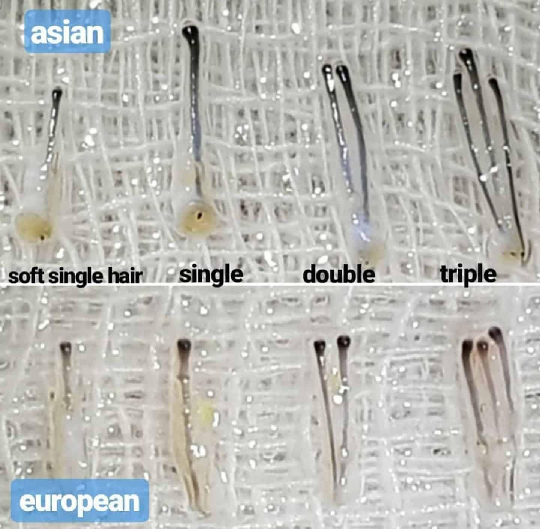סוגים שונים של זקיקי שיער