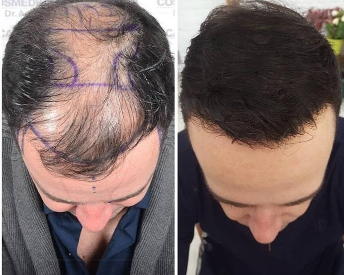תוצאות של השתלת שיער בטורקיה אחרי 9 חודשים