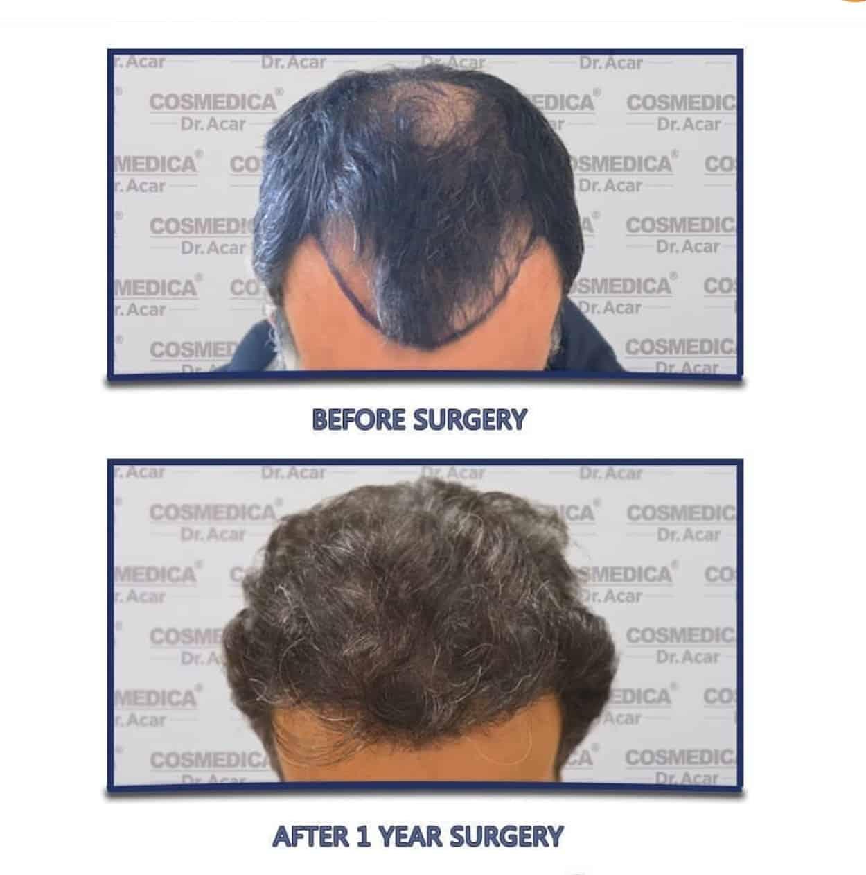 תוצאות של השתלת שיער בטורקיה לפני ואחרי שנה במטופל