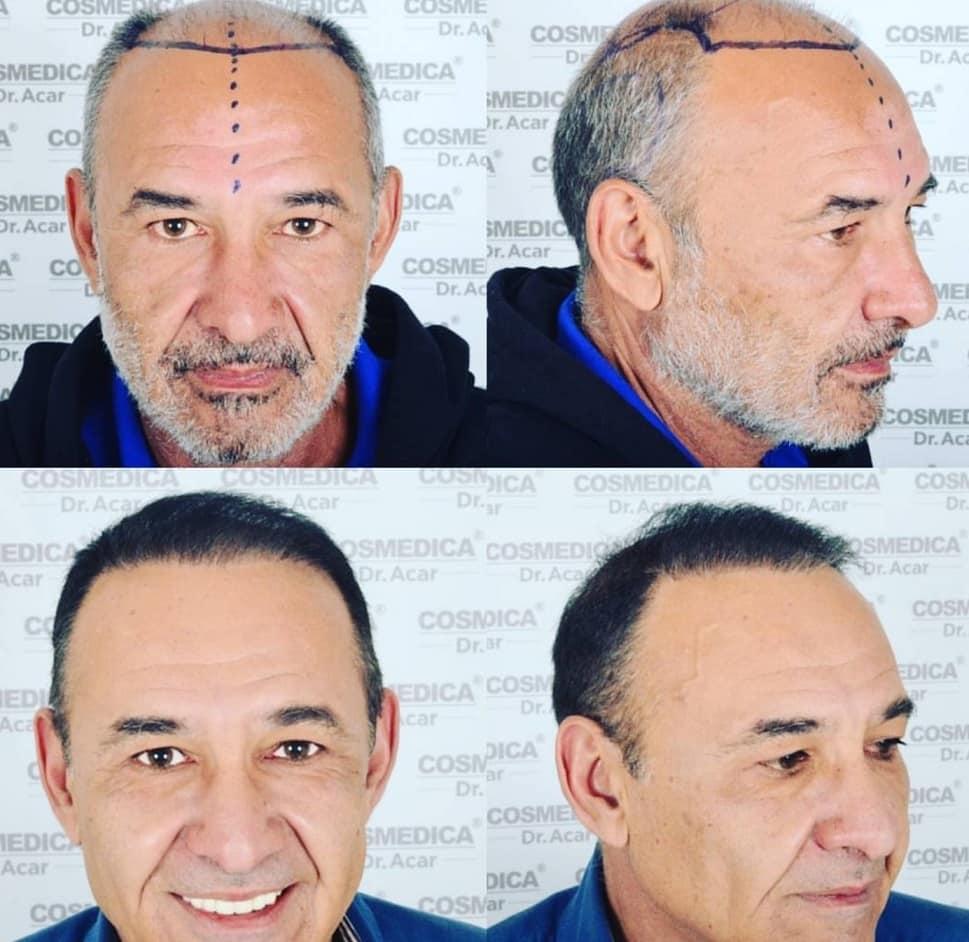 תמונה לפני ואחרי של גבר השתלת שיער בטורקיה שיער מאפיר