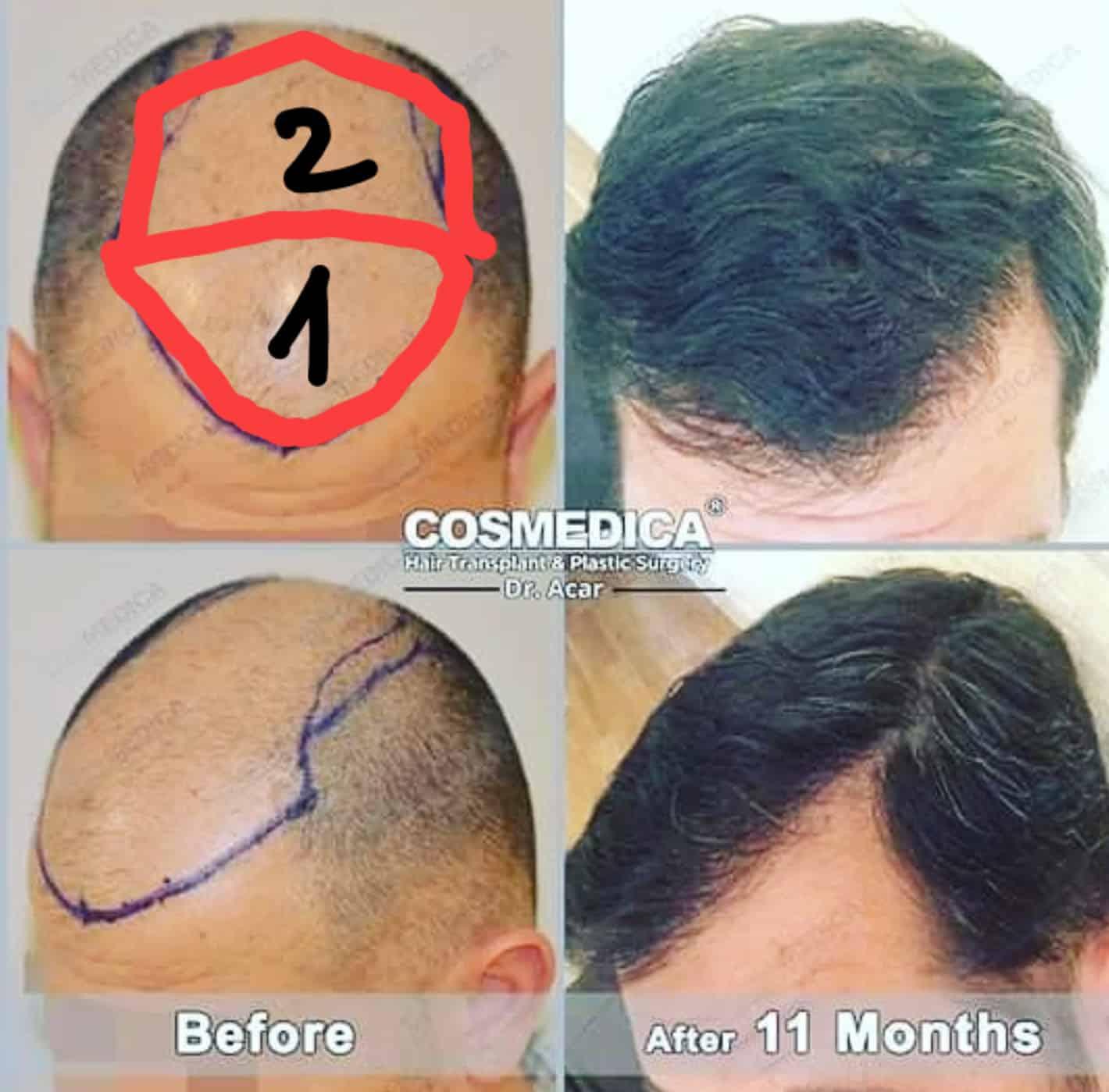 תמונות לפני ואחרי השתלת שיער בטורקיה של גבר עם כמות זקיקים קטנה