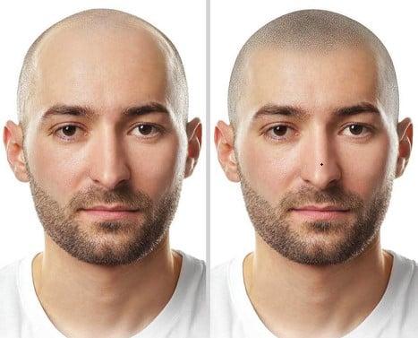 תמונה של בחור מחייך אחרי הדמיית שיער לפני ואחרי