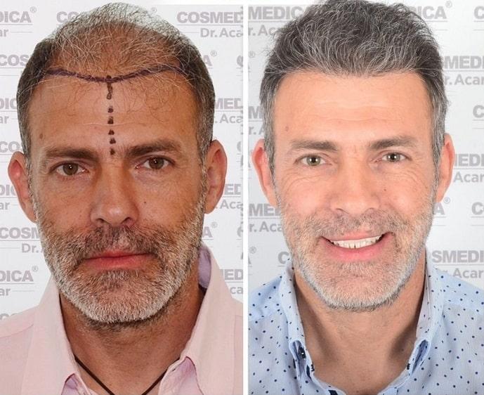 תמונה של גבר שעבר השתלת שיער לפני ואחרי