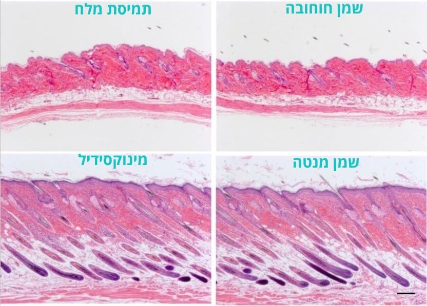 תקריב היסטולוגי על העור של העכברים מהניסוי עם שמן מנטה