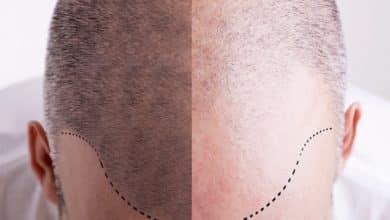 Photo of נשירת שיער רק בצד אחד של הראש: הסיבות ודרכי הטיפול