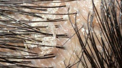 Photo of הצתברות של משקעי שומן על הקרקפת? 2 דרכים להיפטר מהבעיה