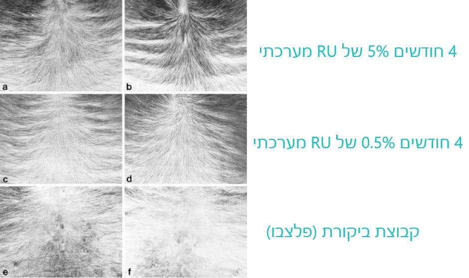 תוצאות הניסוי המערכתי של RU58841 אחרי 4 חודשים