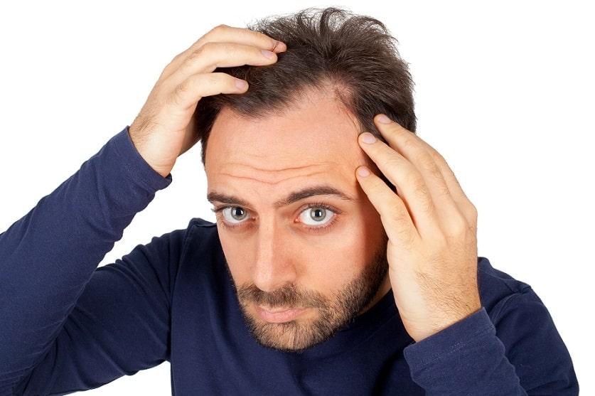 גבר מפריד את השיער שלו כדי לבדוק אם יש לו מפרצים